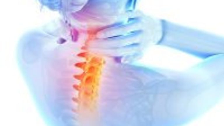 How to Relieve a Stiff Neck-Tips on a Common Condition and Self-care Measures