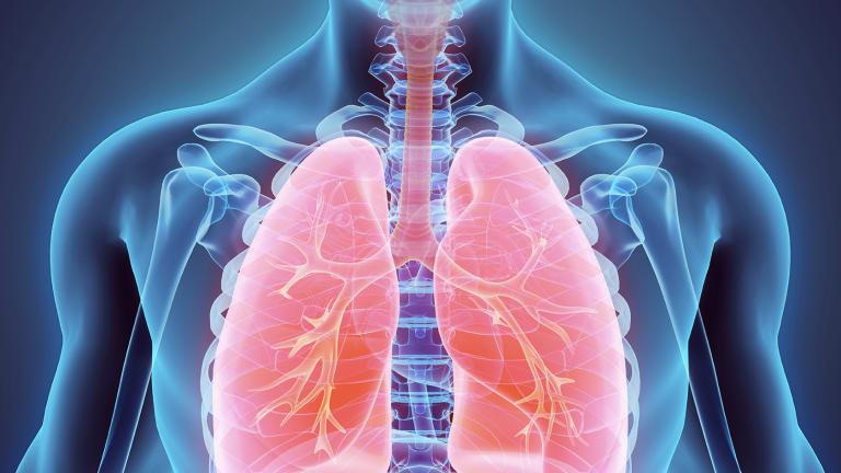 Rituxan Treatment Improves Rheumatoid Associated Interstitial Lung Disease