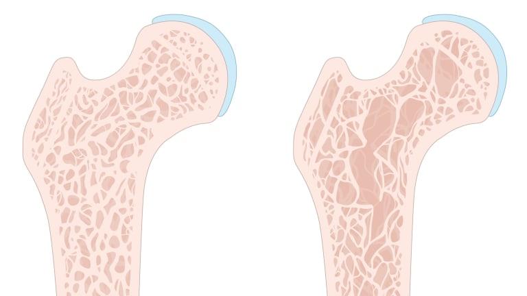 Osteoporosis, Rheumatoid Arthritis, and Women: Knowledge Is Power