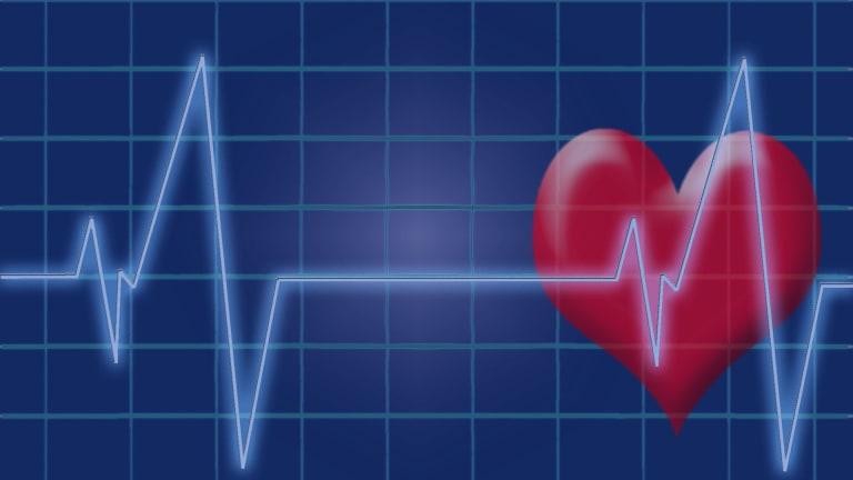 Inflammatory Arthritis & Heart Disease