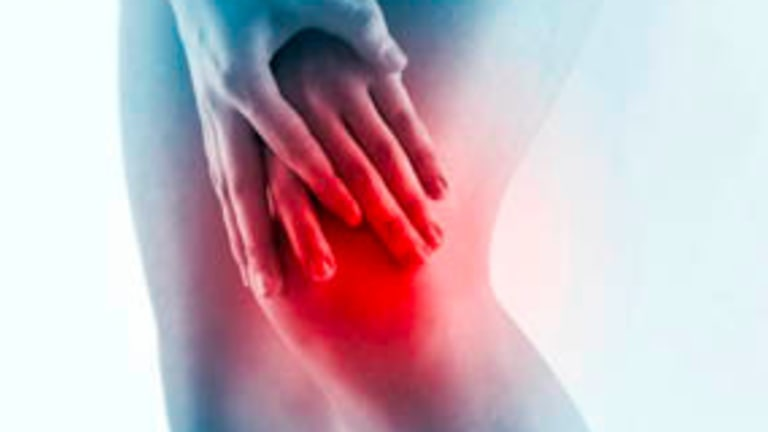 Precision Trial Suggests Celecoxib Safe for Arthritis