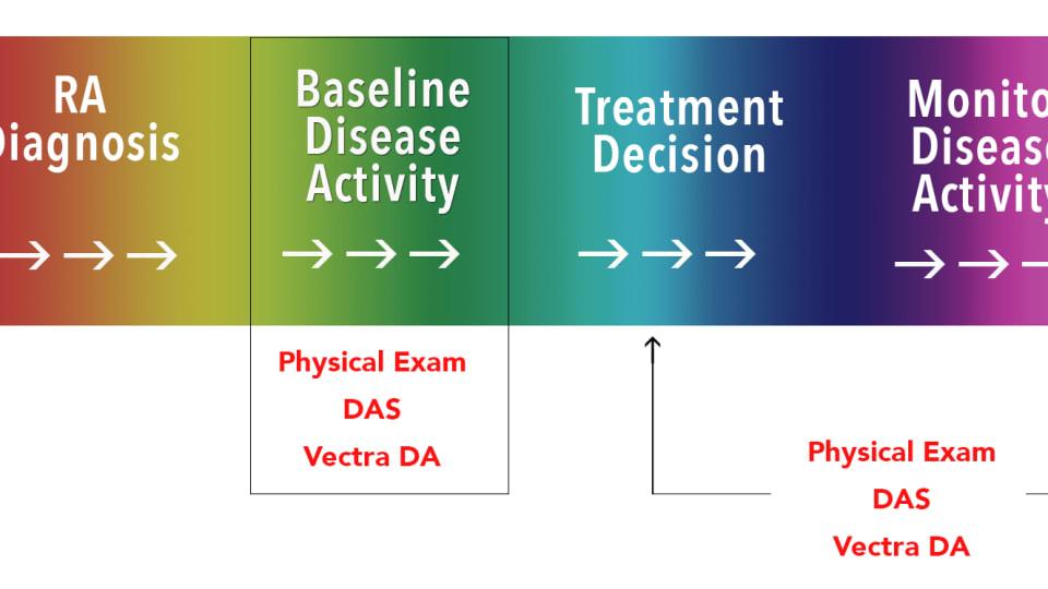 Treatment & Management of Rheumatoid Arthritis