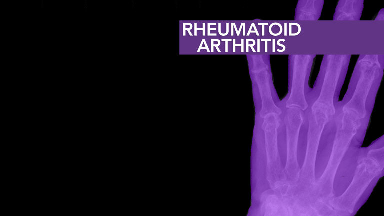 Rheumatoid Arthritis: Newly Diagnosed - Start Here