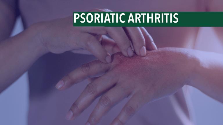 Management & Treatment of Psoriatic Arthritis