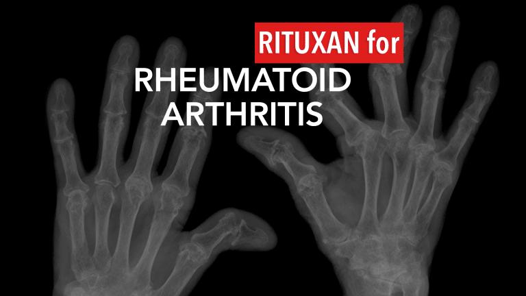 Rituxan Treatment in Rheumatoid Arthritis