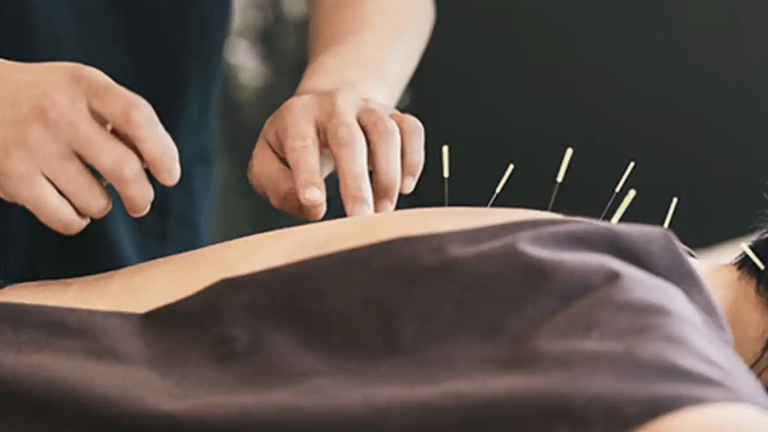 Acupuncture Reduces Aromatase Inhibitor Joint Pain in Women with Breast Cancer