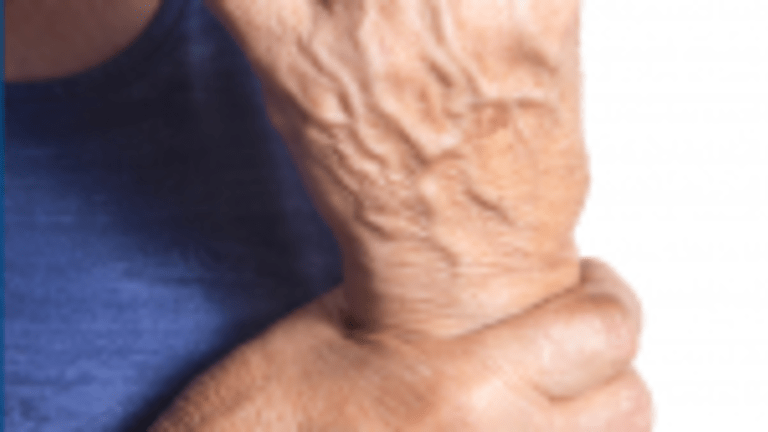 Hand Exercises Prove Beneficial and Cost Effective in Rheumatoid Arthritis