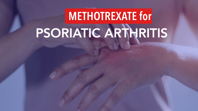 Is Methotrexate Alone the Best Initial Therapy for Psoriatic Arthritis?