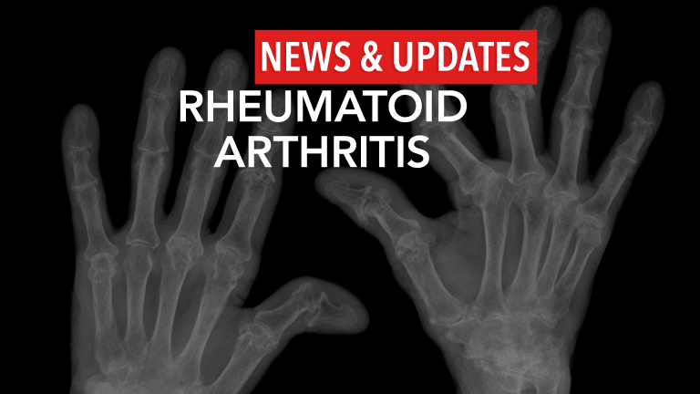 Glucocorticoids Proton Pump Inhibitors Increase Osteoporotic Fracture Risk in RA