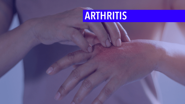 Managing Inflammatory Arthritis From Checkpoint Inhibitors