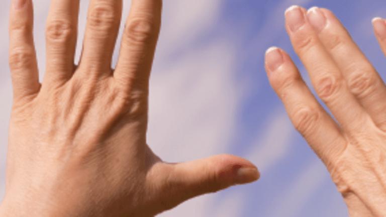 Insights into Rheumatoid Arthritis